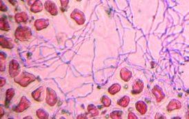 Un hongo ayuda al forraje a resistir enfermedades